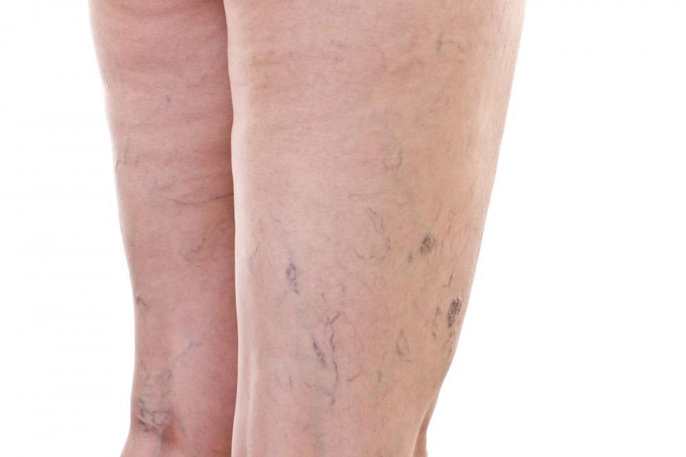 Image showing varicose vein surgeons in NYC