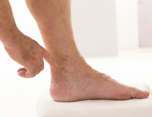Varicose Veins Reappearing After Veins Treatment — Understanding The Causes