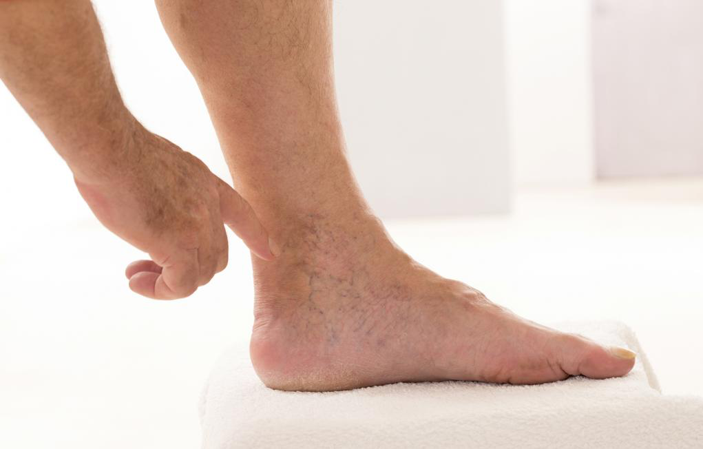 Image showing Varicose Veins treatment center NYC