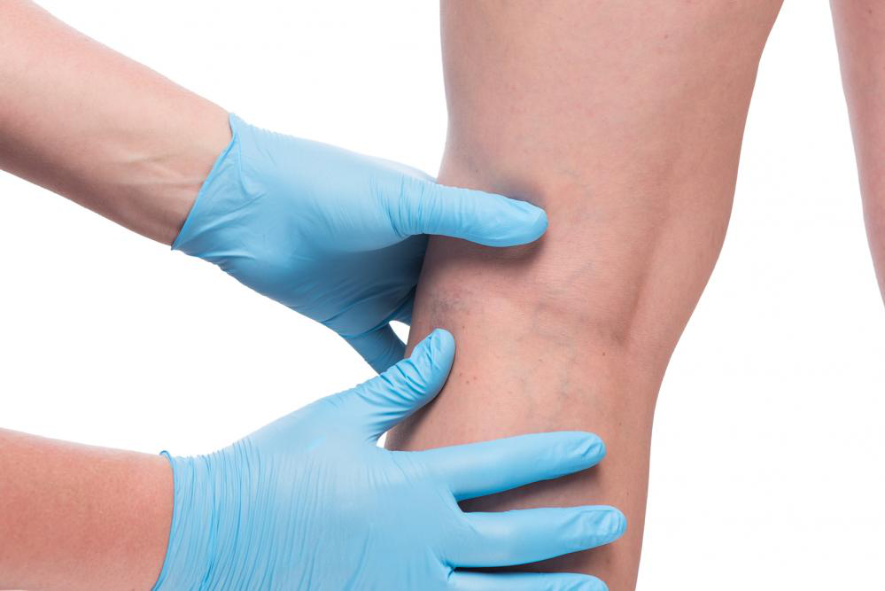 Image showing leg cramps treatment in NYC