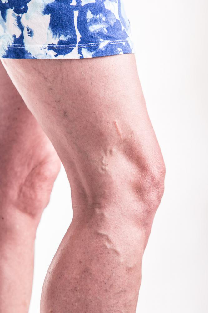 Image showing veins treatment