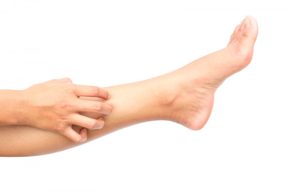 Image showing vein disease