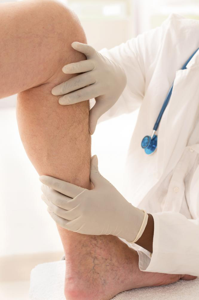 Image showing Veins Treatment Specialist In NYC