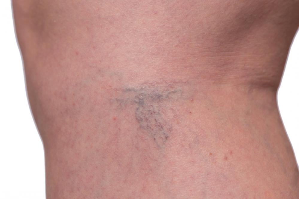 Image showing Sclerotherapy
