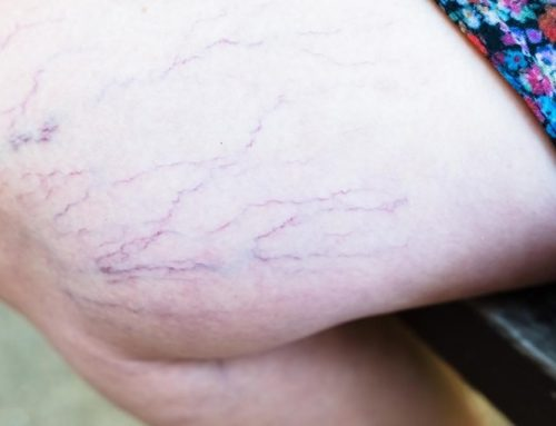 The Dangers of Using Makeup to Hide Varicose Veins